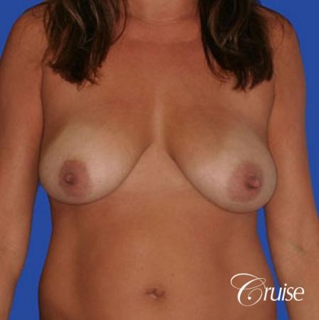 photos of best breast lift anchor with saline implants in Newport Beach - Before Image 1