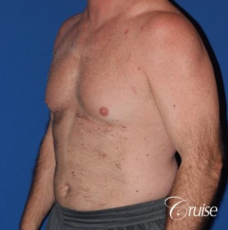 extended pa incision on gynecomastia patient - Before Image 2