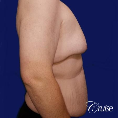 Severe Gynecomastia- Free nipple Graft - Before Image 2
