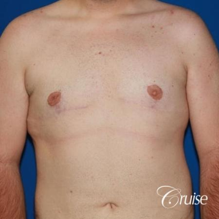 moderate gynecomastia with pointy man boobs - After Image 1