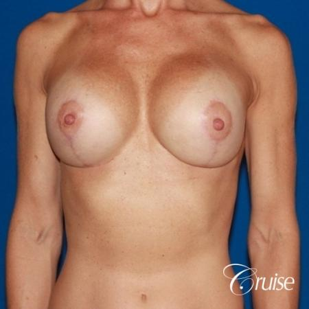 best breast lift results with high profile 375cc implants -  After Image 1