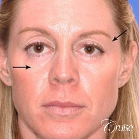 Fat Transfer - Temple, Tear Trough, Lower-Lids, Cheeks - Before Image