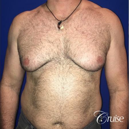 Severe Gynecomastia Correction - Before 1