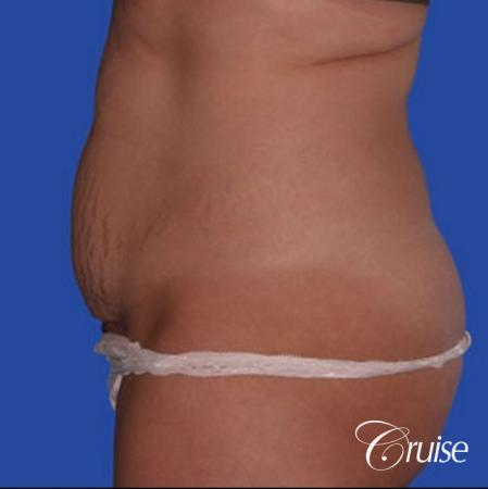 best dramatic flank liposuction pictures - Before Image 2