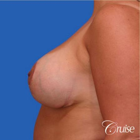 Best breast reduction with silicone augmentation -  After Image 2