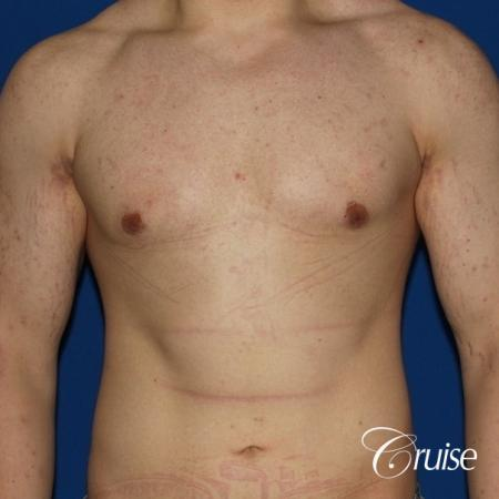 mild-gynecomastia-revision -  After Image 1