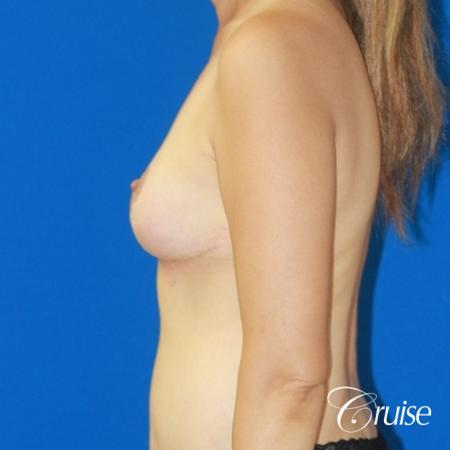 best reduction without implants in Newport Beach -  After Image 2