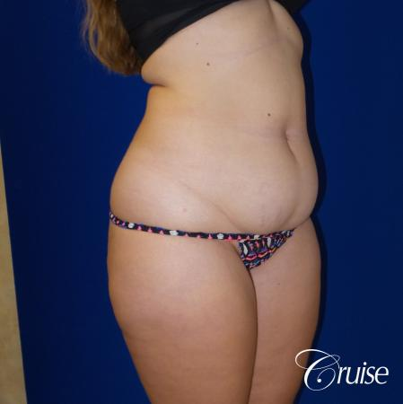 Liposuction Flanks & Abdomen - Before and After Image 5