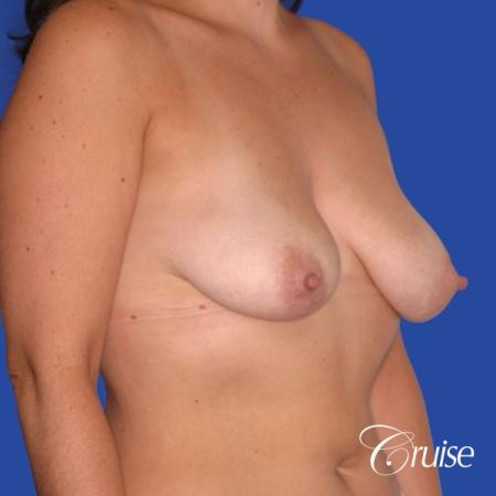 best results for breast lift surgeon in Newport Beach - Before and After Image 3