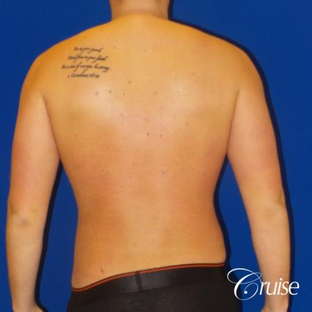 Best  before and after lipo photos of guys -  After Image 4