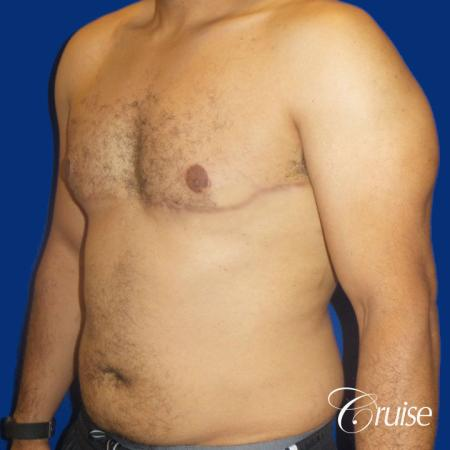 Best gynecomastia specialist in united states -  After Image 2