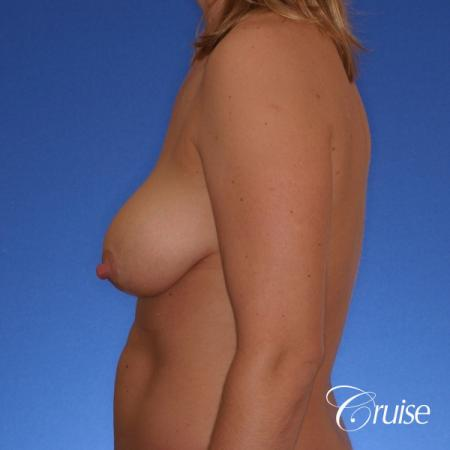 best breast lift anchor with silicone implants on 40 year old woman - Before Image 2