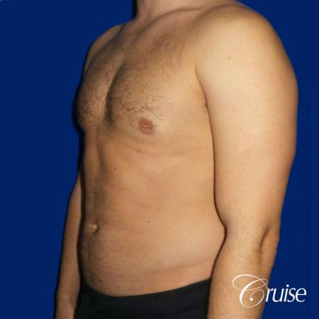 Moderate Gynecomastia -Puffy Nipple -Areola Incision - After Image 2