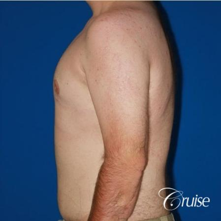 moderate gynecomastia with pointy man boobs - After Image 2