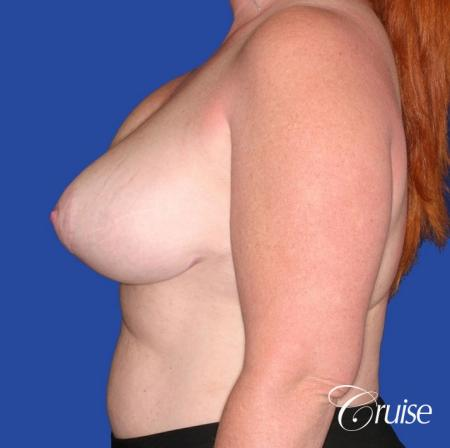 capsular contracture before and after pictures in Newport Beach - Before Image 2