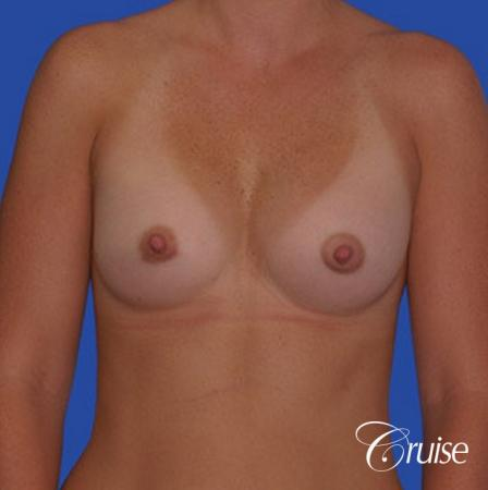saline implant rupture newport beach plastic surgeon -  After Image 1