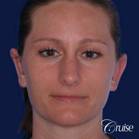 best female otoplasty in orange county - After Image