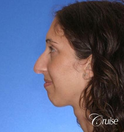 29 yr old with large female chin augmentation - Before Image 2
