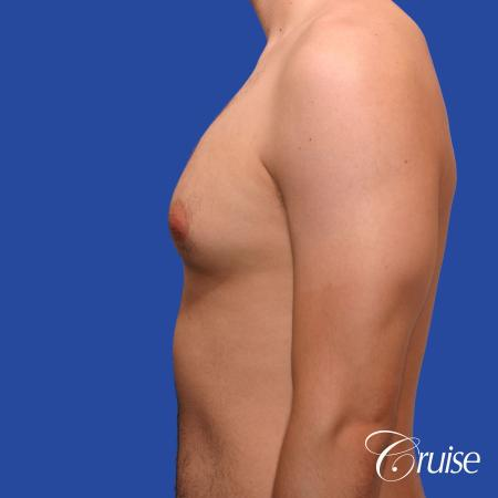 20 year old with moderate gynecomastia - Before Image 2