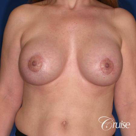 best breast lift donut scars in Newport Beach -  After Image 1