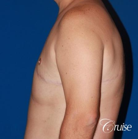 male breast severe gynecomastia free nipple graft anchor -  After Image 2