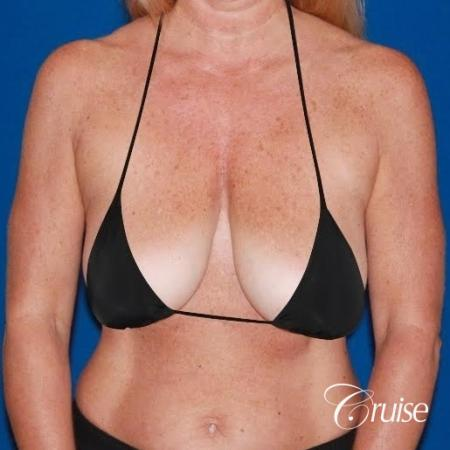 best breast lift with implants - Before and After Image 5