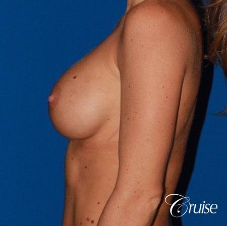 breast reconstruction better cleavage and capsulectomy - Before Image 2