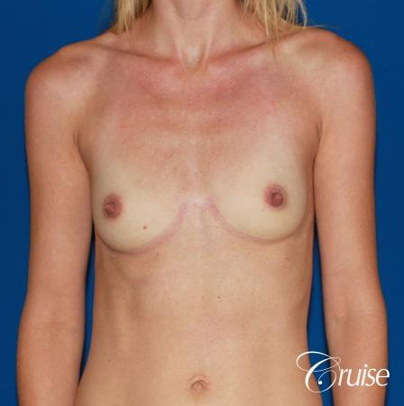 Breast Augmentation - Before Image 1