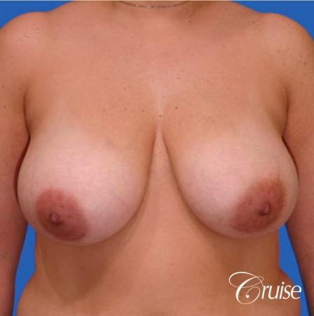 Best breast reduction with silicone augmentation - Before Image 1