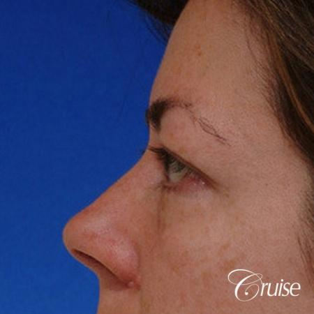 blepharoplasty specialist - Before Image 2