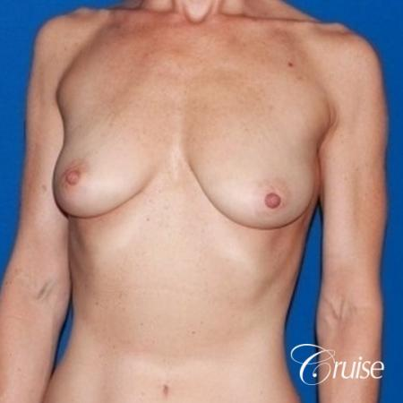 best breast lift results with high profile 375cc implants - Before Image 1