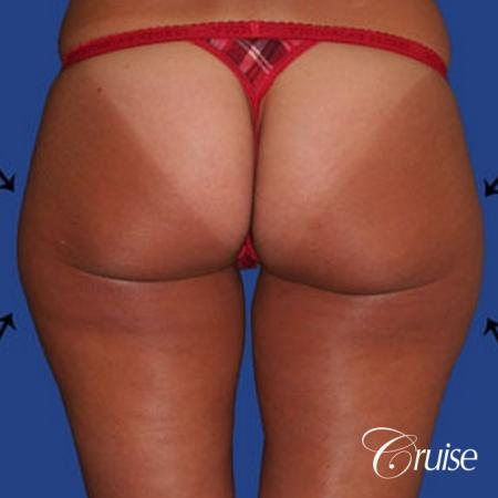 best thigh thinning liposuction on thighs - Before Image