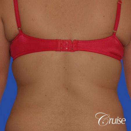 best liposuction pictures of flanks and lipo back -  After Image 1
