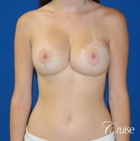 best saline breast reduction on large breast - After Image
