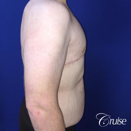 severe gynecomastia -  After Image 2