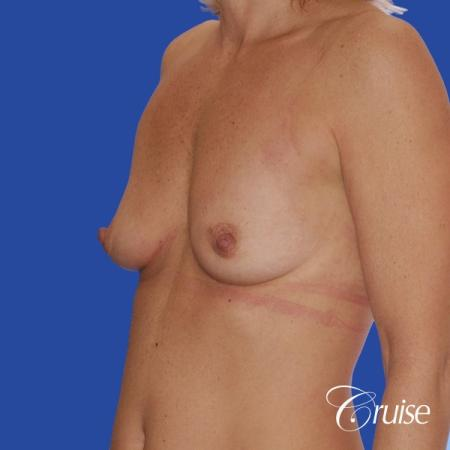 breast lift anchor with silicone implants on adult - Before Image 3