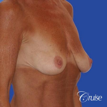 best results for breast lift in Orange County - Before and After Image 2