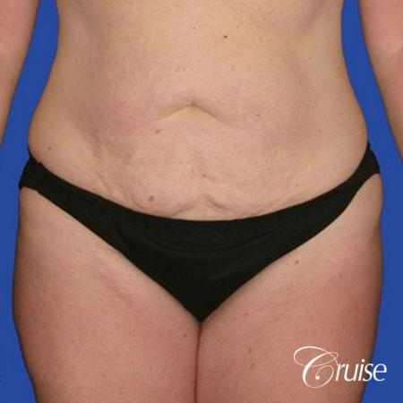 best pictures of liposuction abdomen with skin laxity -  After Image 3
