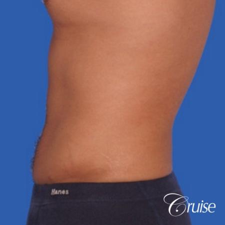 best liposuction to contour a males body -  After Image 2