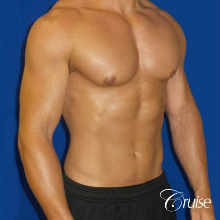 Gynecomastia puffy nipples cost -  After Image 2