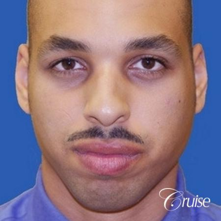 male patient with best pictures of chin implant - Before Image 1