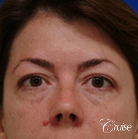 best before and after temple lift newport beach - Before Image
