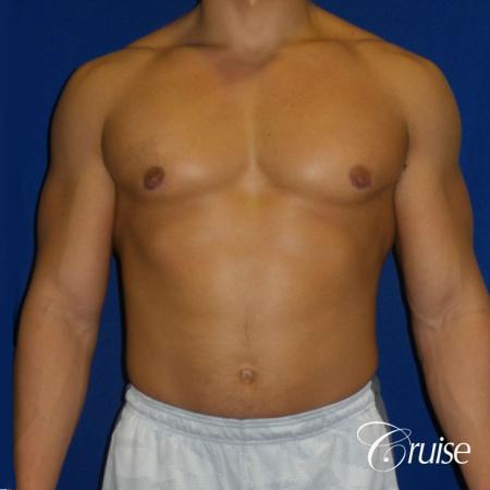 bodybuilder with gynecomastia -  After 1