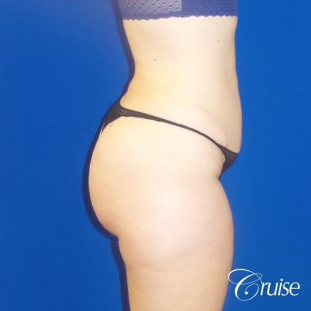 Liposuction Flanks & Abdomen - After Image 4_2