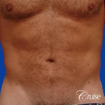 best male ab sculpting liposuction abdomen flanks - After Image