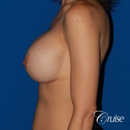 best breast lift revision with moderate profile silicone implants - Before 2