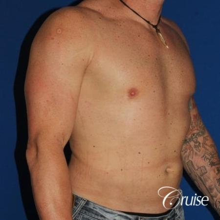 moderate gynecomastia with puffy nipple on athletic adult -  After Image 4