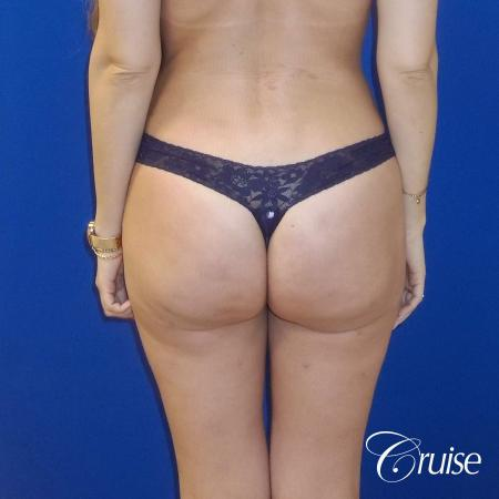 Liposuction -  After Image 4