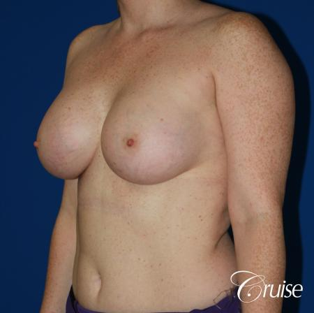 Breast Augmentation - After 3