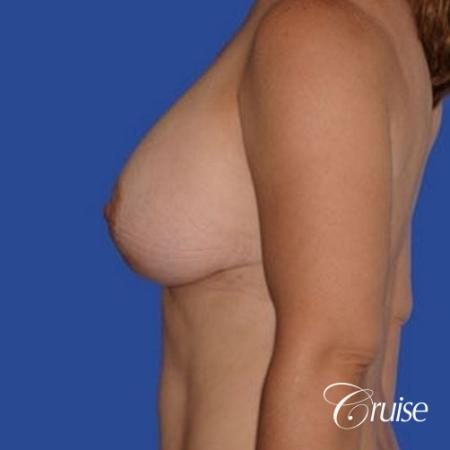 pictures of 42 yr old with breast lift anchor revision - Before Image 2